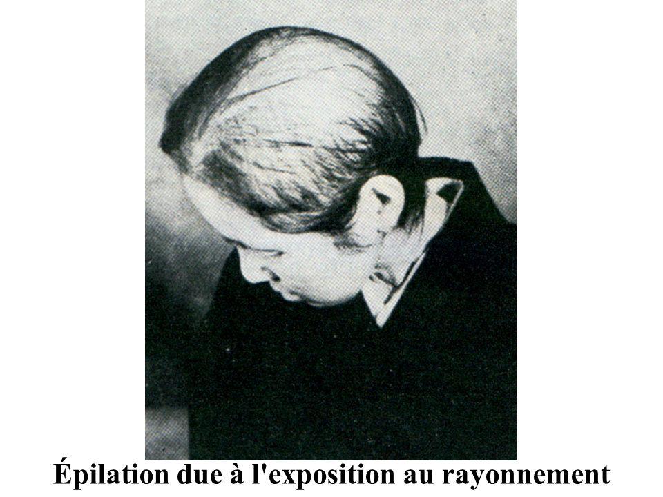 Épilation due à l exposition au rayonnement