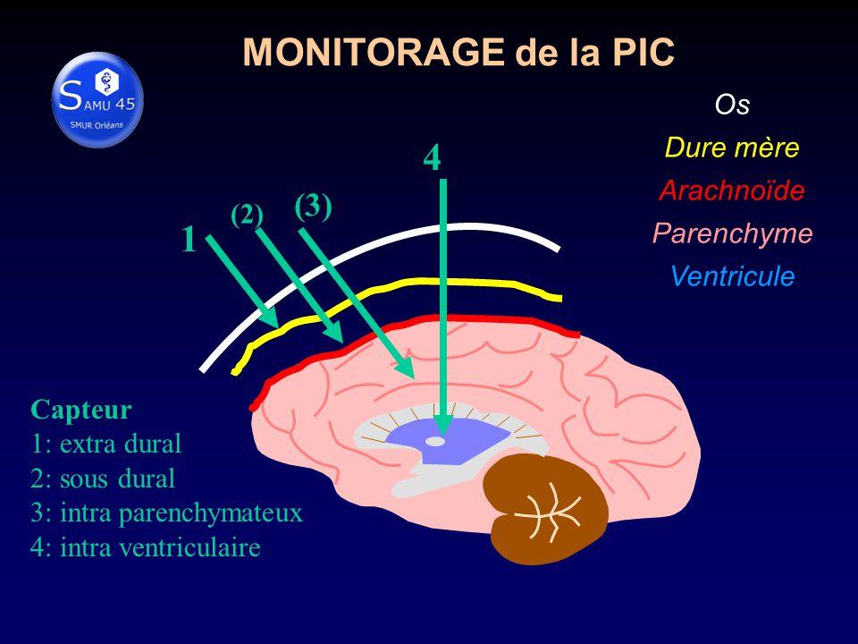 MONITORAGE de la PIC 4 1 (3) Os Dure mère Arachnoïde Parenchyme