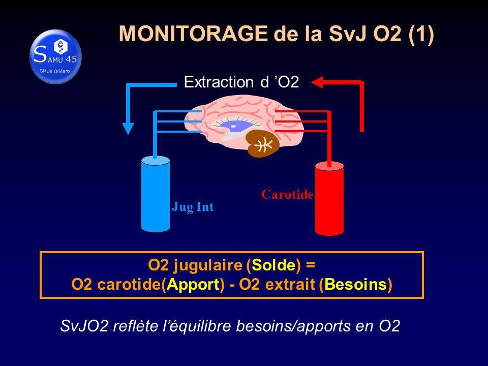 O2 carotide(Apport) - O2 extrait (Besoins)