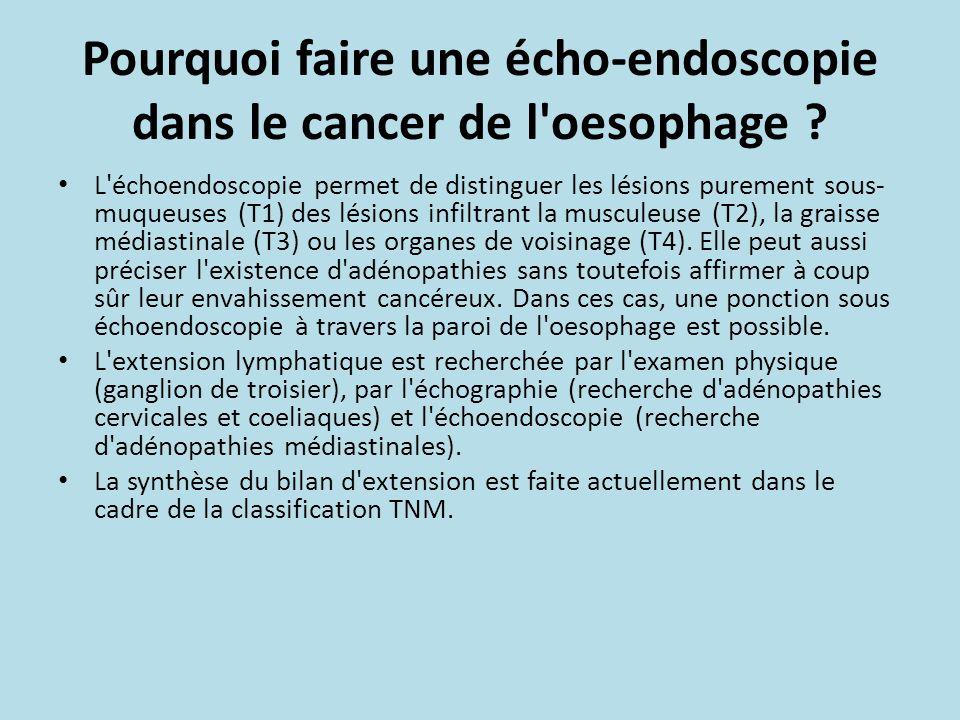 Pourquoi faire une écho-endoscopie dans le cancer de l oesophage