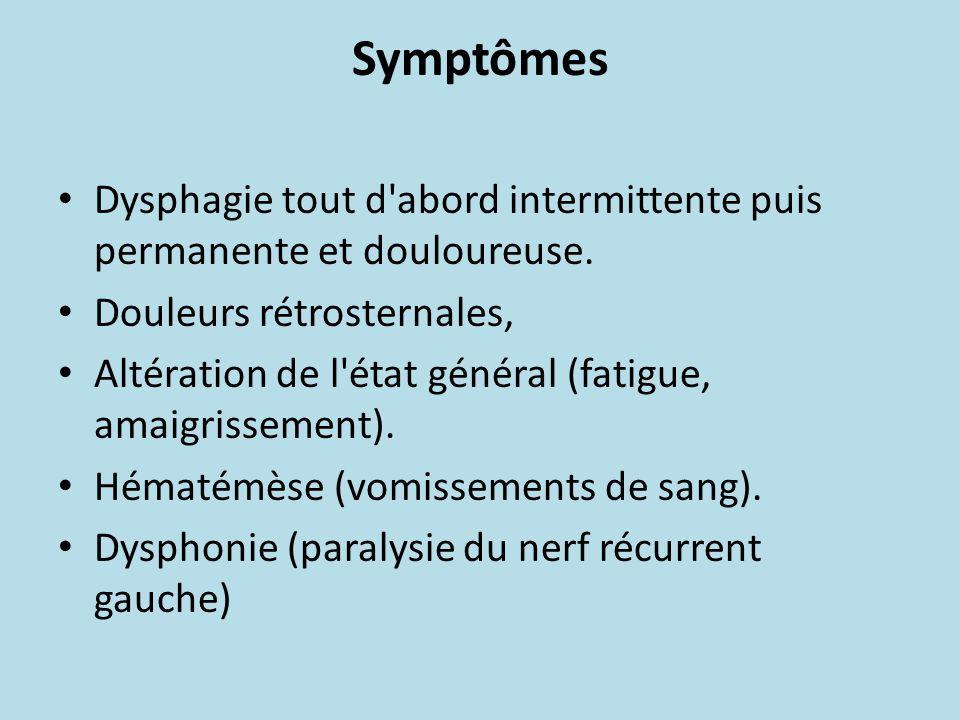 Symptômes Dysphagie tout d abord intermittente puis permanente et douloureuse. Douleurs rétrosternales,