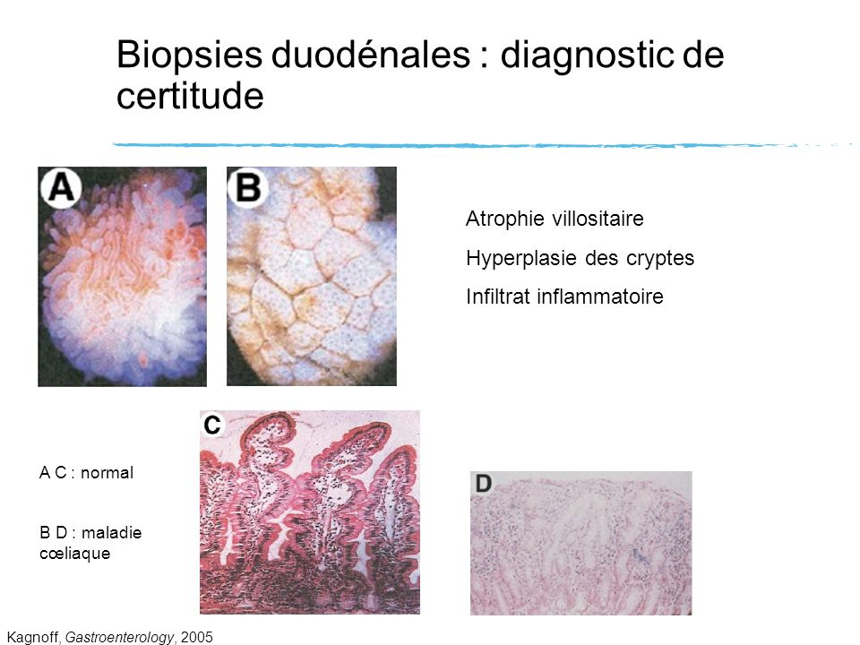 Biopsies duodénales : diagnostic de certitude