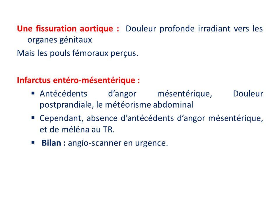 Une fissuration aortique : Douleur profonde irradiant vers les organes génitaux