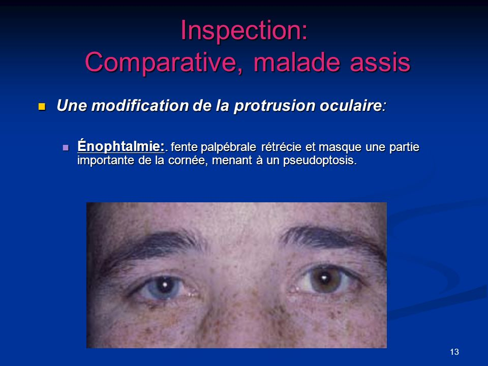 Inspection: Comparative, malade assis