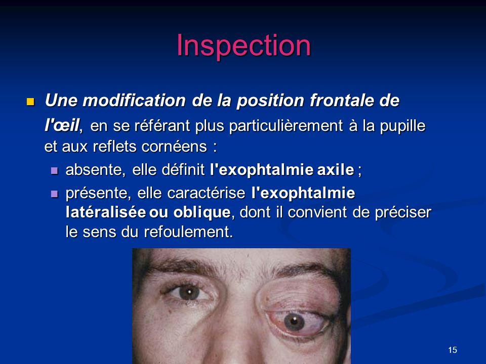 Inspection Une modification de la position frontale de l œil, en se référant plus particulièrement à la pupille et aux reflets cornéens :