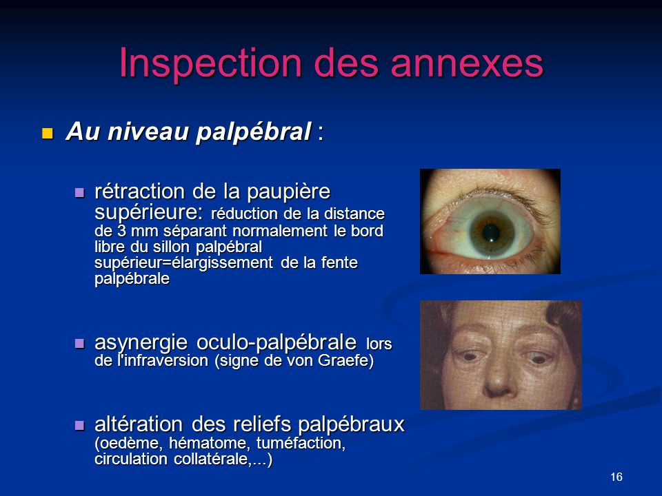 Inspection des annexes