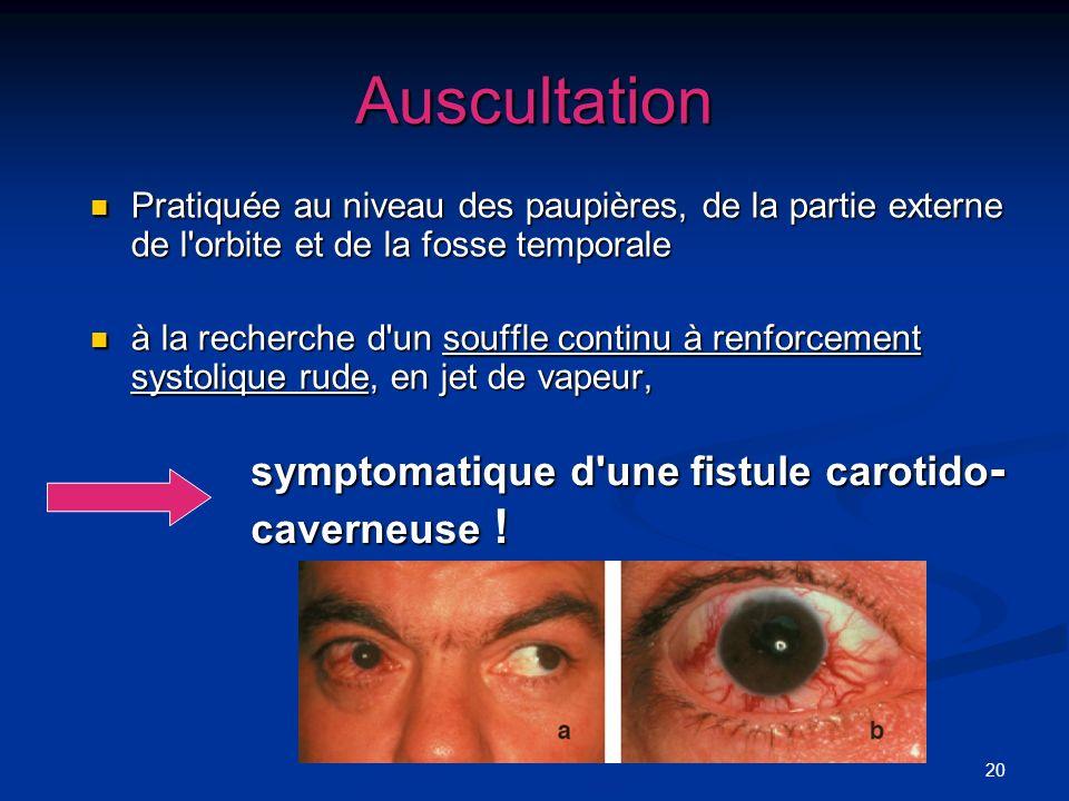 Auscultation symptomatique d une fistule carotido-caverneuse !