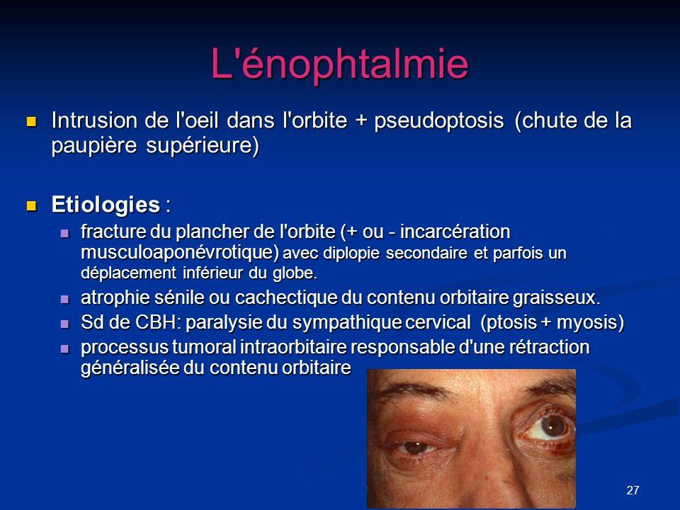 L énophtalmie Intrusion de l oeil dans l orbite + pseudoptosis (chute de la paupière supérieure) Etiologies :