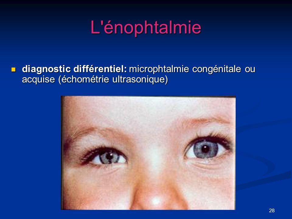 L énophtalmiediagnostic différentiel: microphtalmie congénitale ou acquise (échométrie ultrasonique)