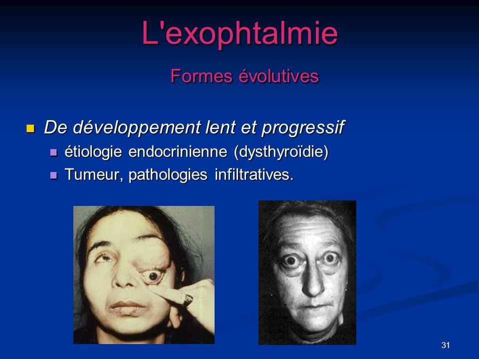 L exophtalmie Formes évolutives
