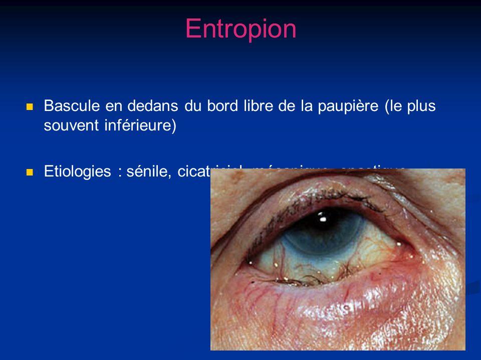 Entropion Bascule en dedans du bord libre de la paupière (le plus souvent inférieure) Etiologies : sénile, cicatriciel, mécanique, spastique.