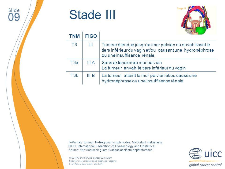 Stade III 09 Slide TNM FIGO T3 III
