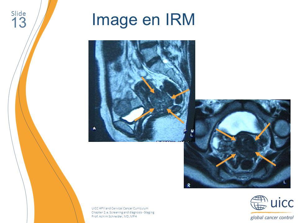 Slide Image en IRM. 13.