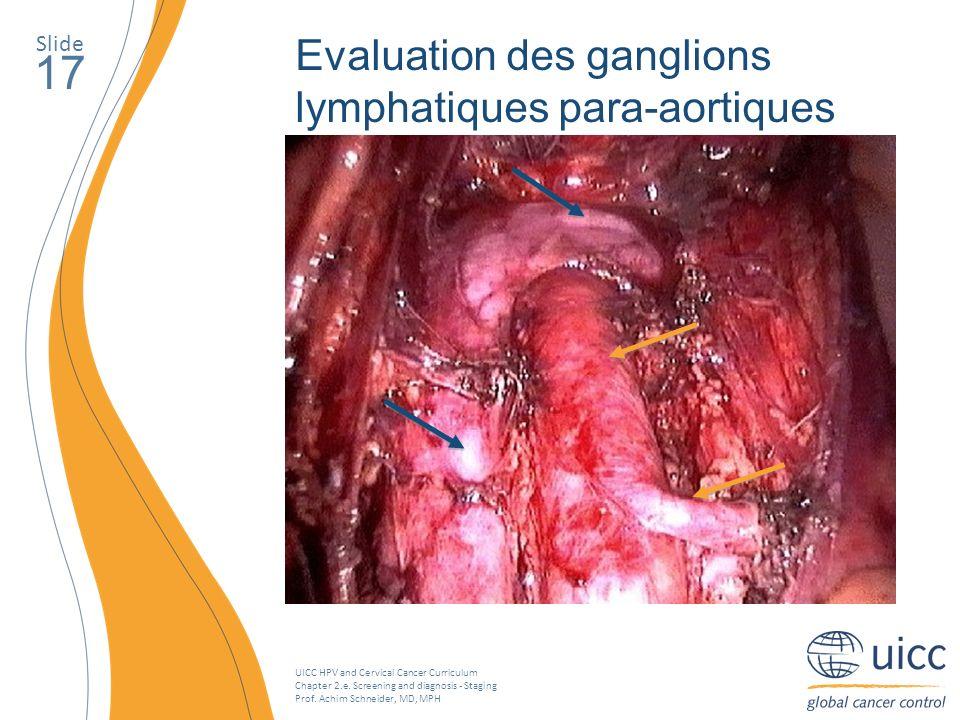 17 Evaluation des ganglions lymphatiques para-aortiques Slide