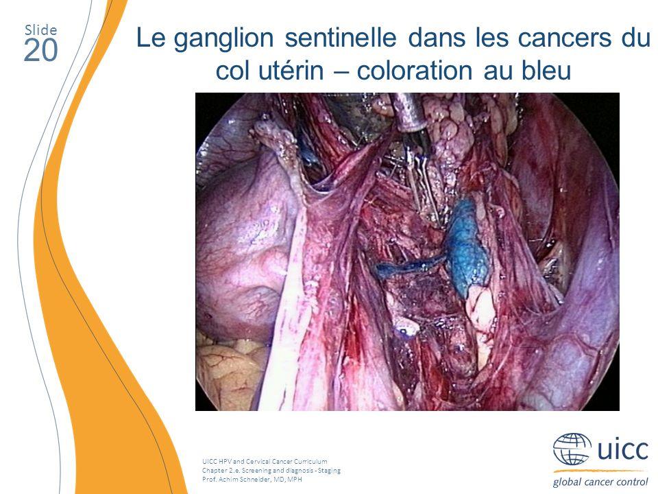 Slide Le ganglion sentinelle dans les cancers du col utérin – coloration au bleu. 20.