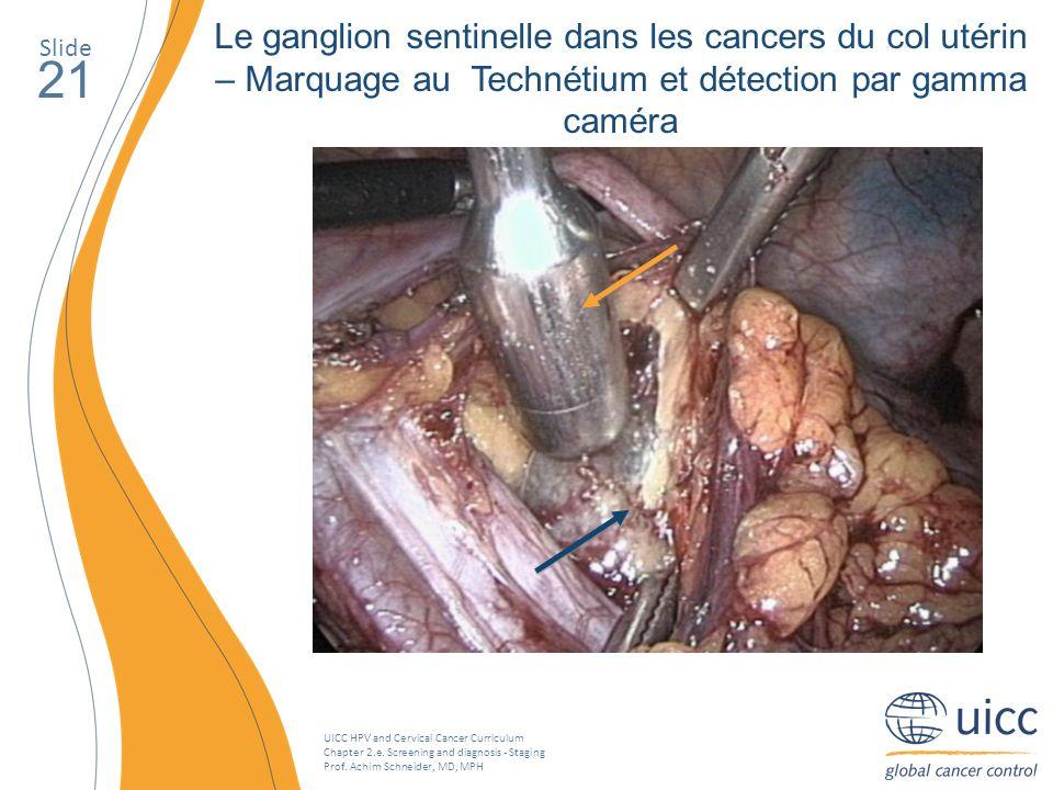 Le ganglion sentinelle dans les cancers du col utérin – Marquage au Technétium et détection par gamma caméra