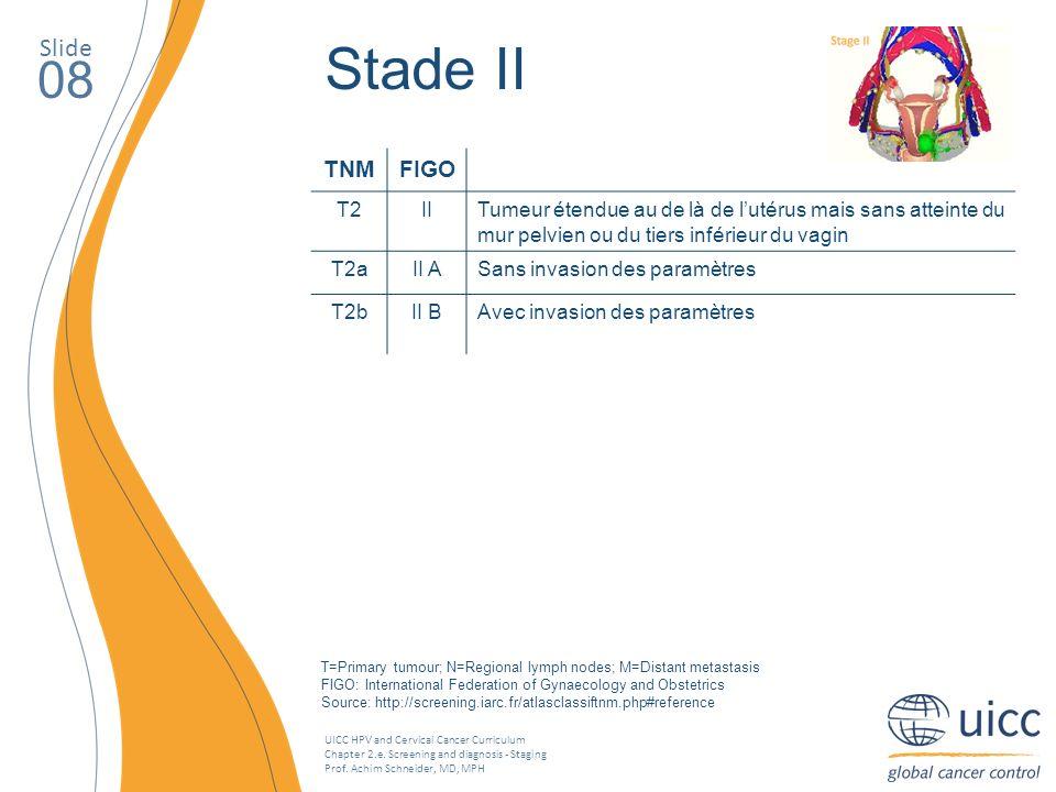 Stade II 08 Slide TNM FIGO T2 II