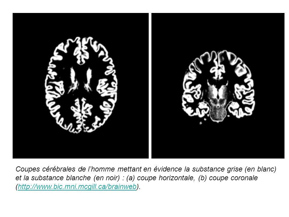 Coupes cérébrales de l'homme mettant en évidence la substance grise (en blanc) et la substance blanche (en noir) : (a) coupe horizontale, (b) coupe coronale (http://www.bic.mni.mcgill.ca/brainweb).