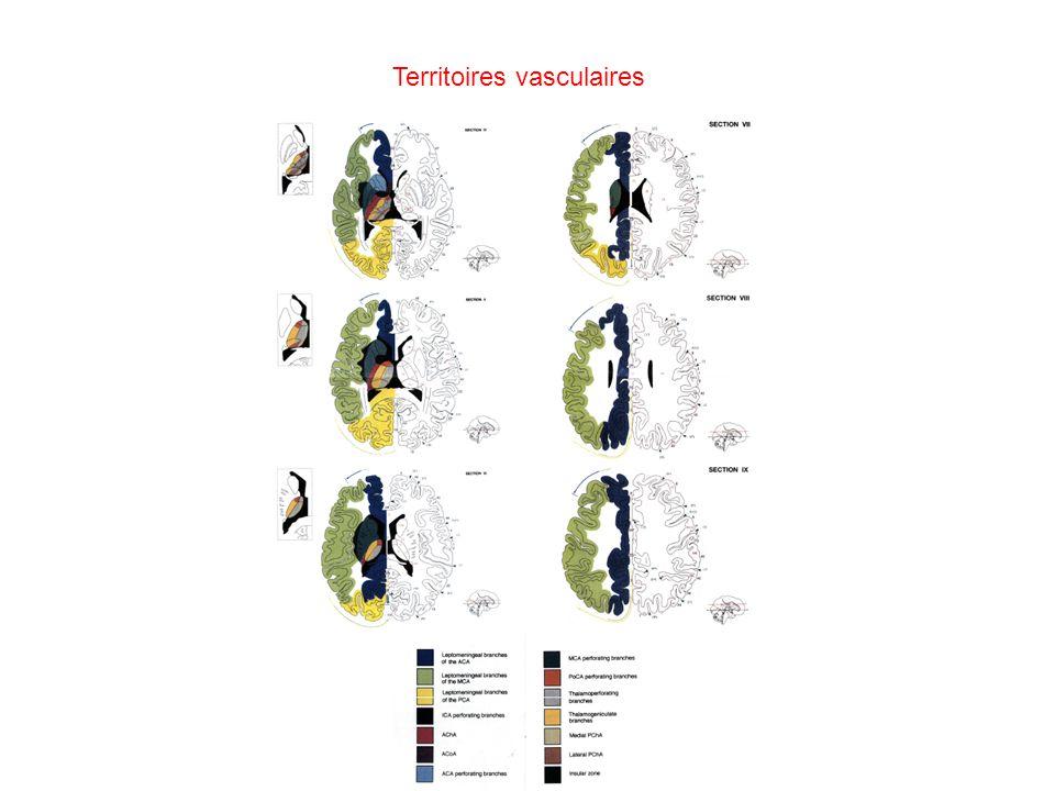 Territoires vasculaires