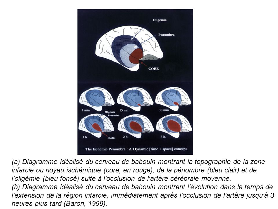 (a) Diagramme idéalisé du cerveau de babouin montrant la topographie de la zone infarcie ou noyau ischémique (core, en rouge), de la pénombre (bleu clair) et de l'oligémie (bleu foncé) suite à l'occlusion de l'artère cérébrale moyenne.