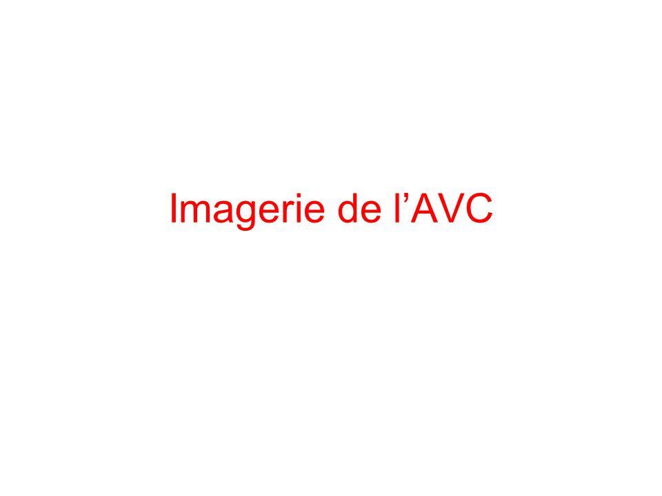 Imagerie de l'AVC
