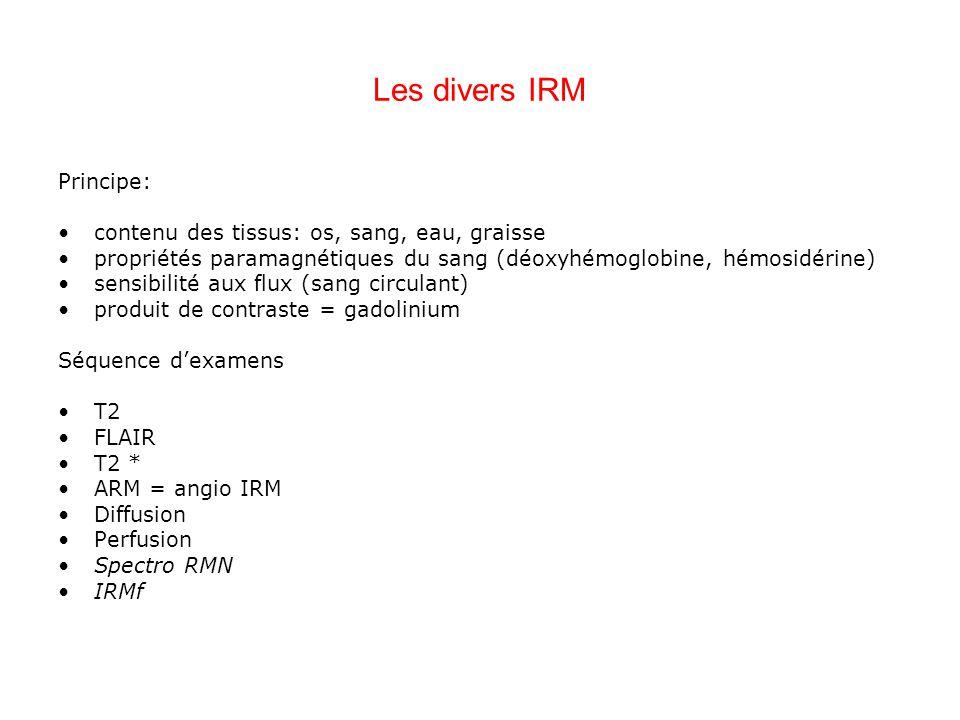Les divers IRM Principe: contenu des tissus: os, sang, eau, graisse
