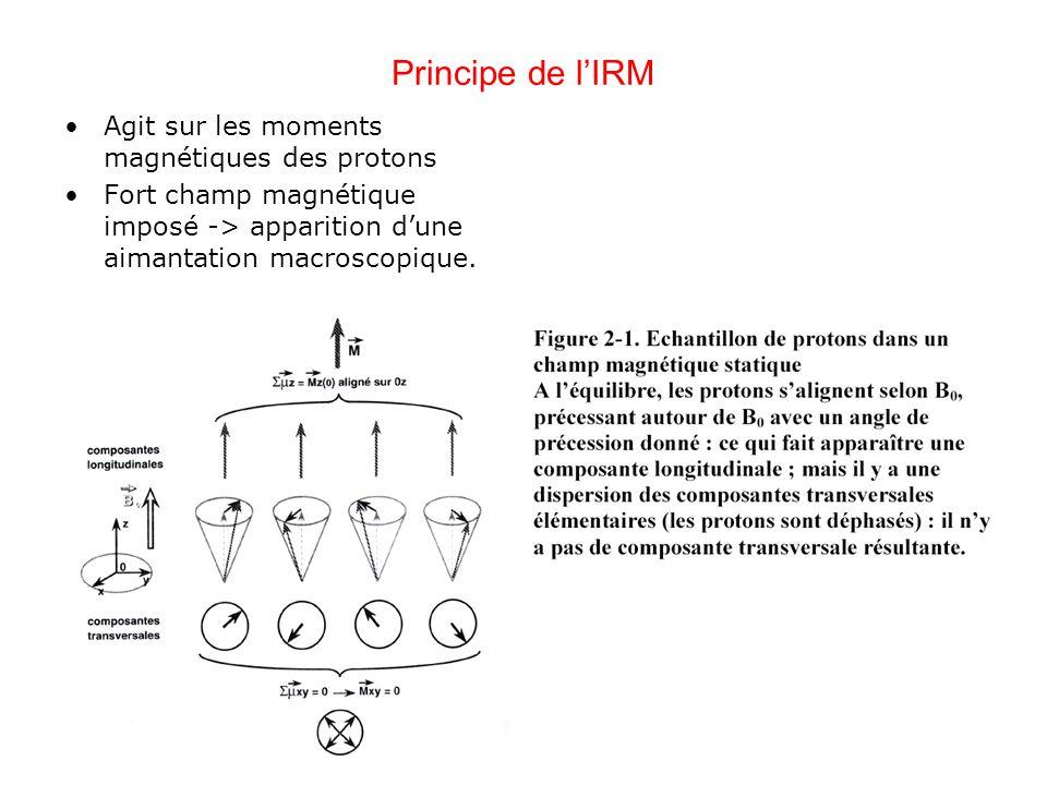 Principe de l'IRM Agit sur les moments magnétiques des protons