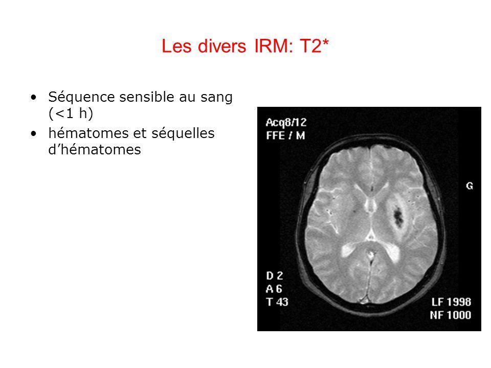 Les divers IRM: T2* Séquence sensible au sang (<1 h)