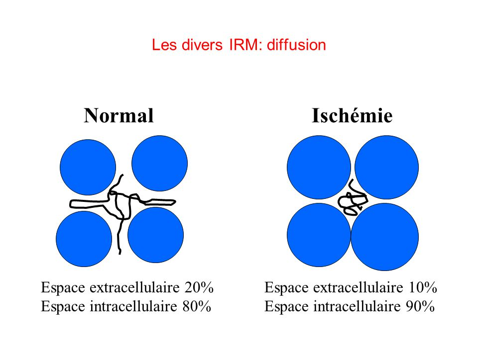 Les divers IRM: diffusion
