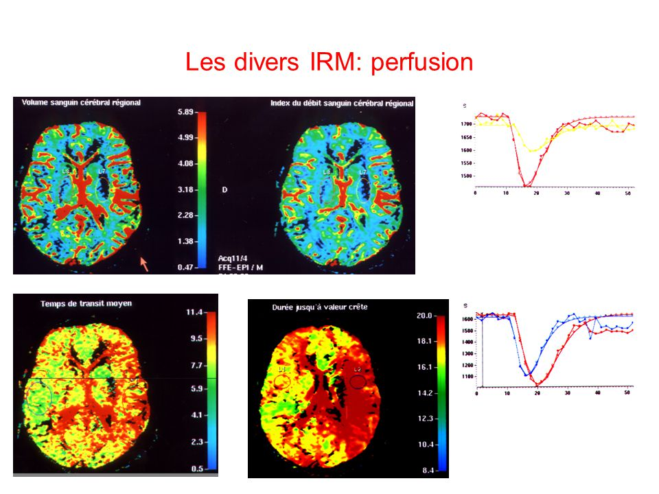 Les divers IRM: perfusion