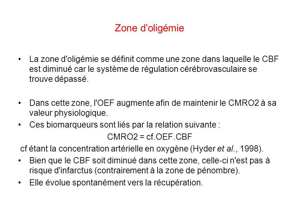 Zone d'oligémie