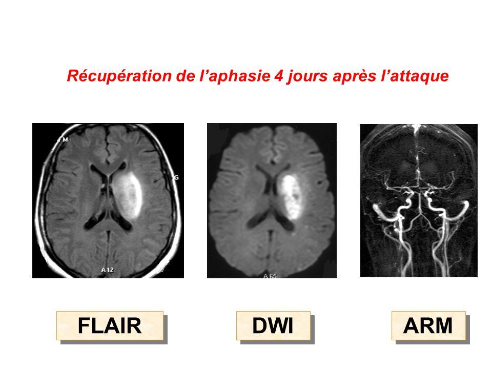 Récupération de l'aphasie 4 jours après l'attaque