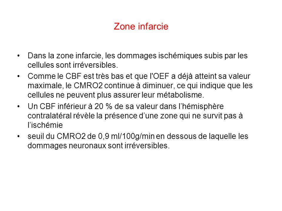 Zone infarcie Dans la zone infarcie, les dommages ischémiques subis par les cellules sont irréversibles.