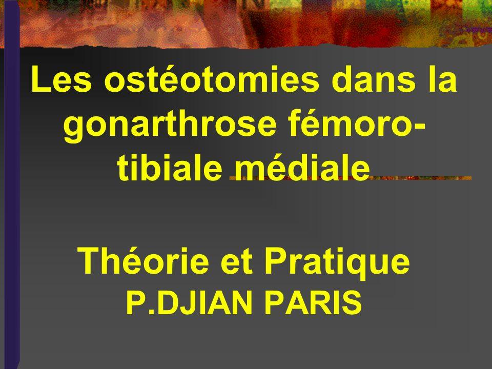 Les ostéotomies dans la gonarthrose fémoro-tibiale médiale Théorie et Pratique P.DJIAN PARIS