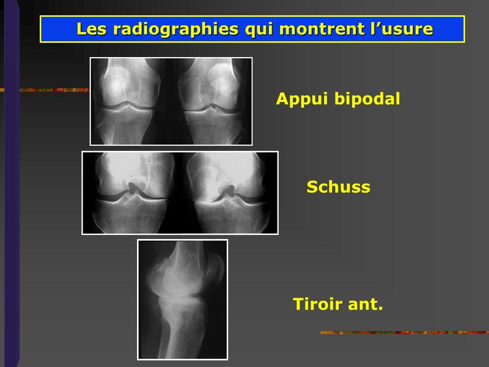 Les radiographies qui montrent l'usure