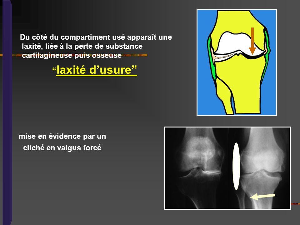 Du côté du compartiment usé apparaît une laxité, liée à la perte de substance cartilagineuse puis osseuse