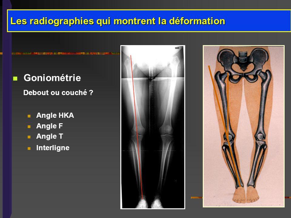 Les radiographies qui montrent la déformation
