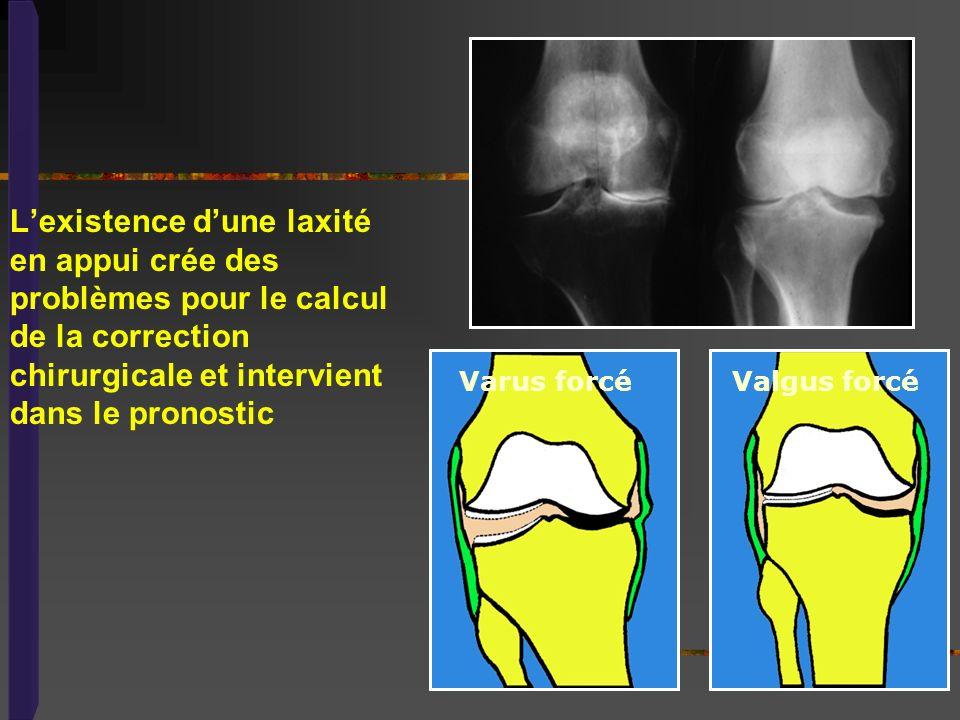 L'existence d'une laxité en appui crée des problèmes pour le calcul de la correction chirurgicale et intervient dans le pronostic