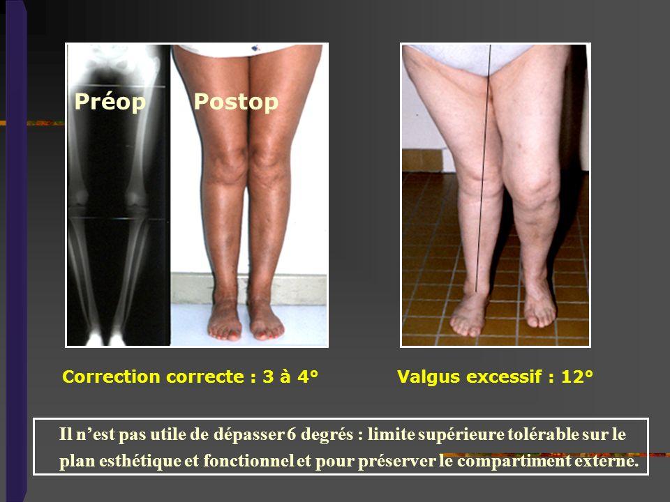 Préop Postop Correction correcte : 3 à 4° Valgus excessif : 12°