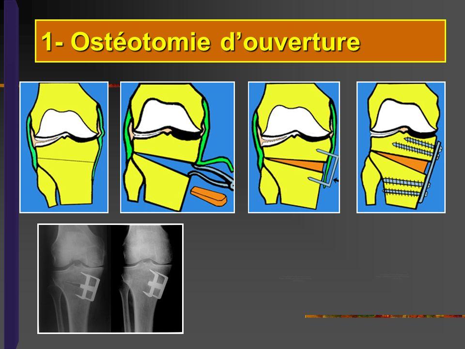 1- Ostéotomie d'ouverture