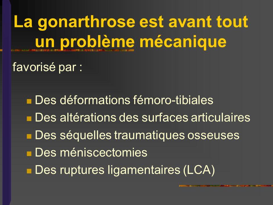 La gonarthrose est avant tout un problème mécanique
