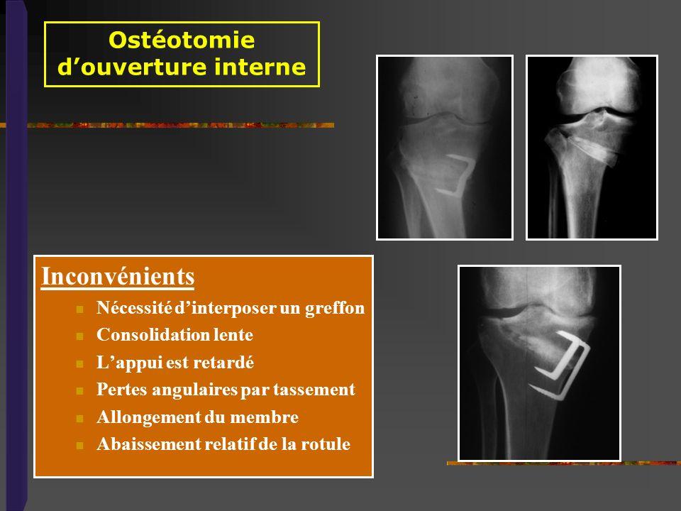 Ostéotomie d'ouverture interne