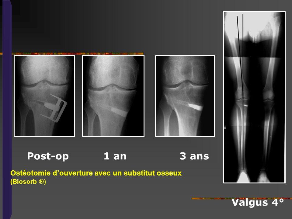 Ostéotomie d'ouverture avec un substitut osseux (Biosorb ®)