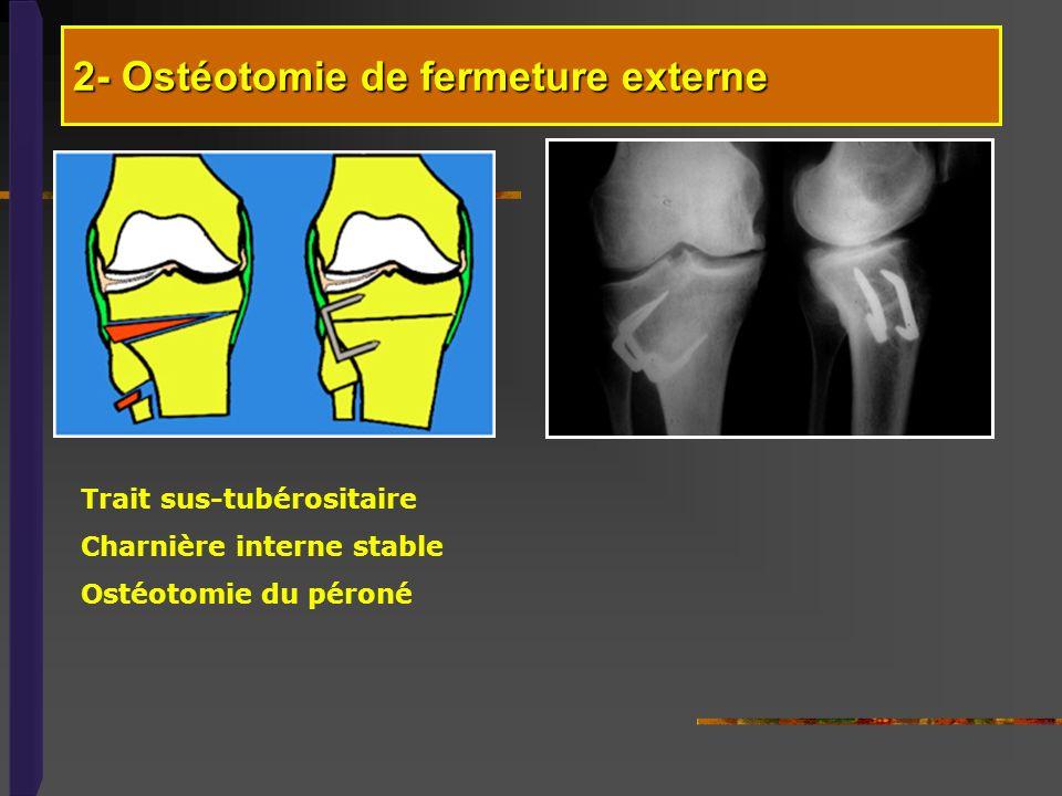 2- Ostéotomie de fermeture externe