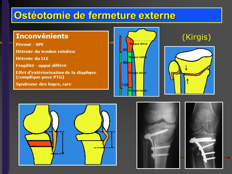 Ostéotomie de fermeture externe