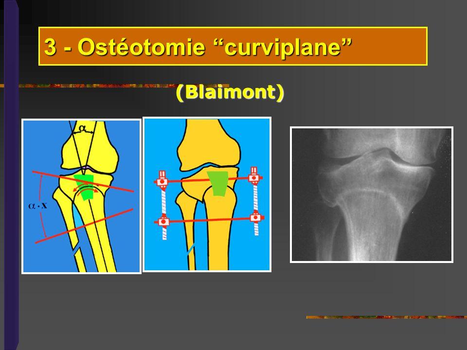 3 - Ostéotomie curviplane