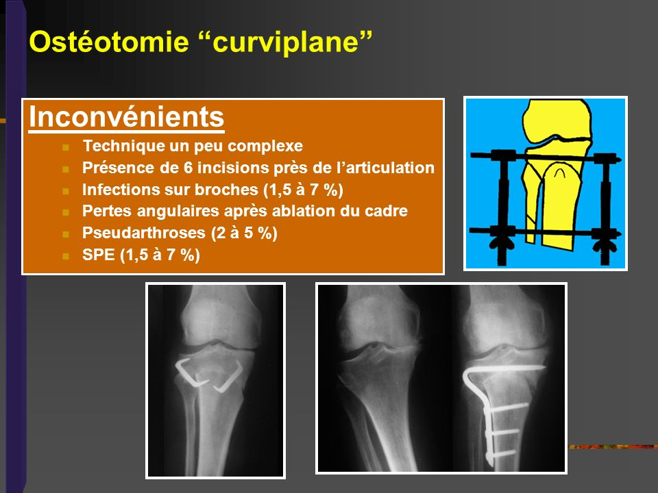 Ostéotomie curviplane