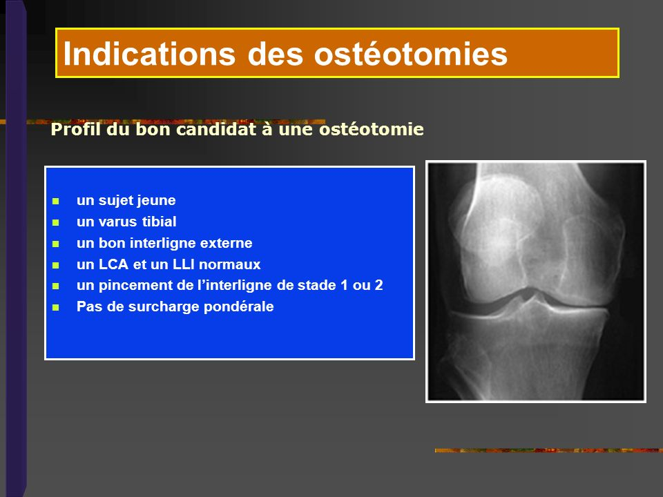 Indications des ostéotomies