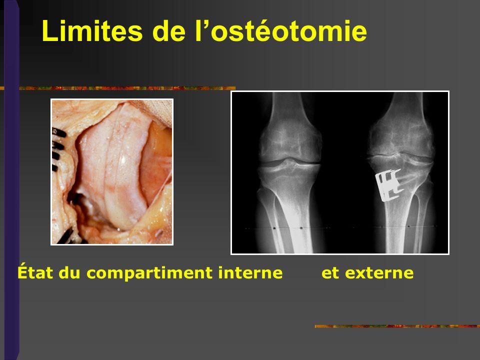 Limites de l'ostéotomie