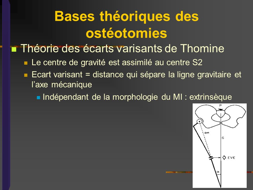 Bases théoriques des ostéotomies